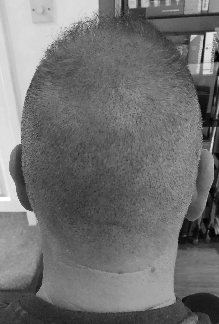 SMP-for-hair-head-scarring-daventry