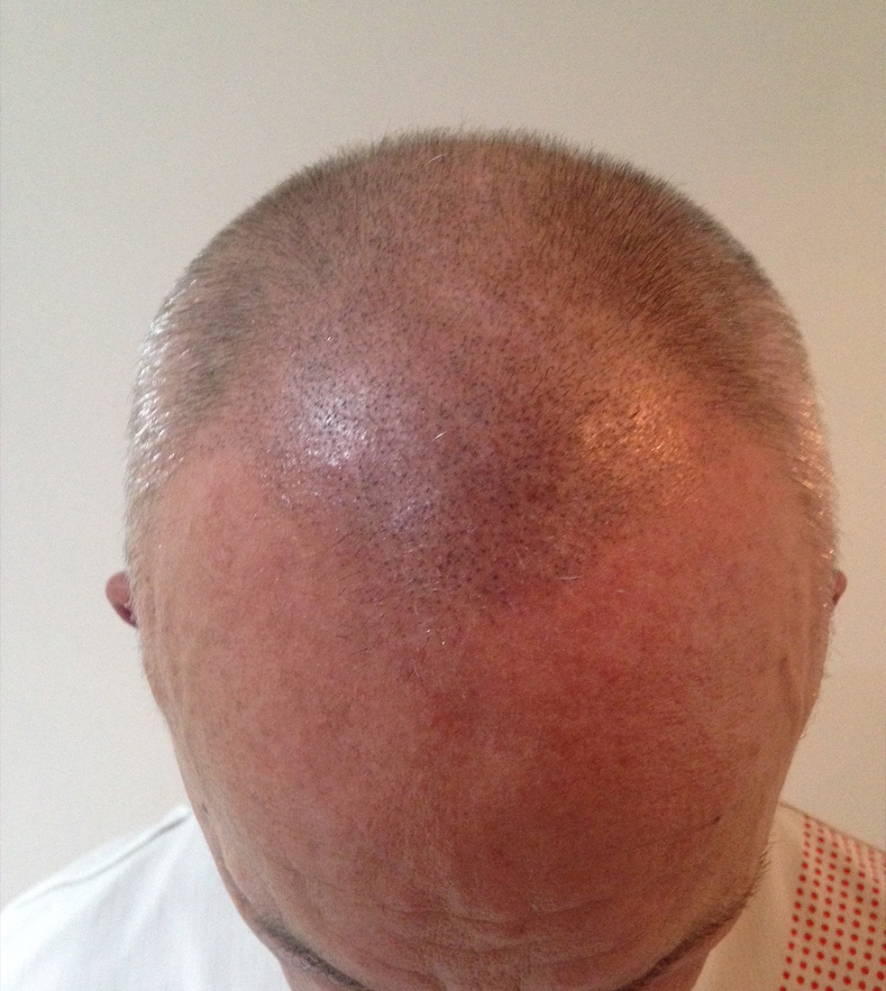 scalp-micro-pigmentation-after-daventry