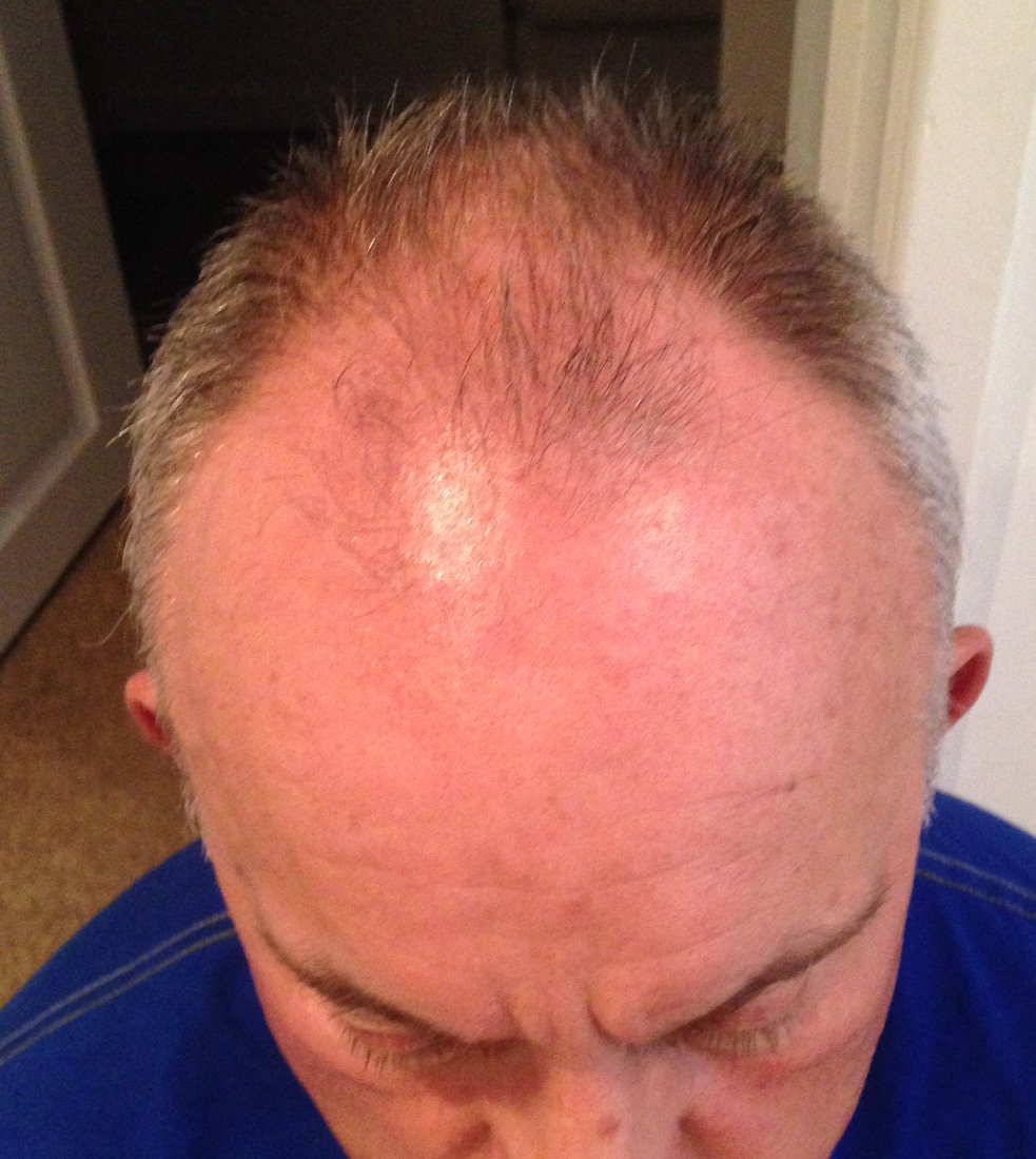 scalp-micro-pigmentation-before-daventry