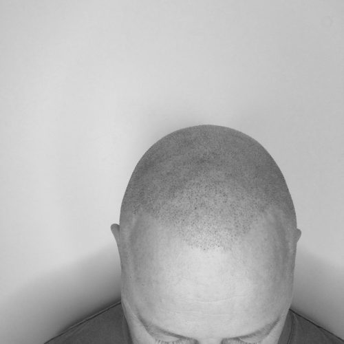 scalp-micropigmentation-services-daventry