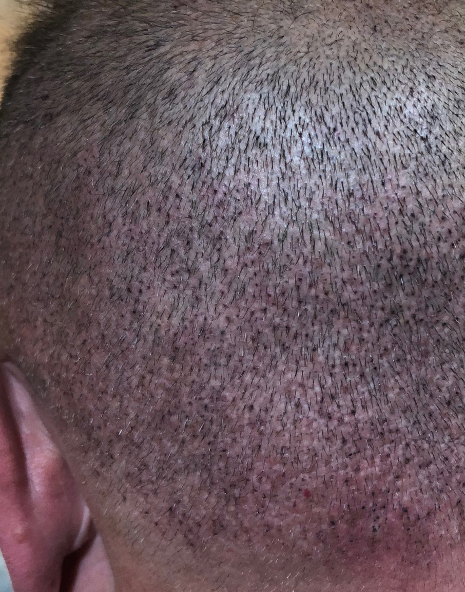 scalp-micro-pigmentation-scars-after-daventry